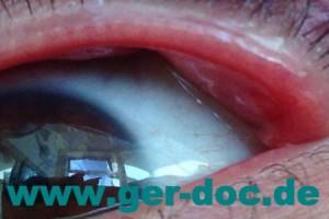 диагностика инкапсулированного халязиона в Германии