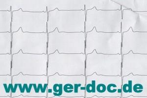 Диагностика и лечение тахикардии в Германии