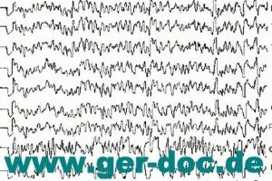 Диагностика эпилепсии в Германии