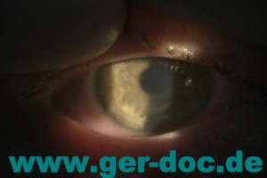Диагностика и лечение катаракты в Мюнхене.