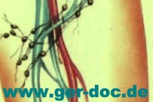 Диагностика причин воспаление паховых лимфатических узлов в Германии