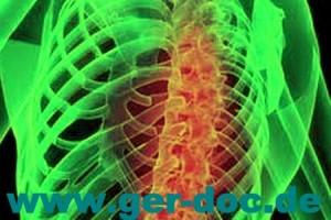 Диагностика грудного отдела позвоночника в Германии