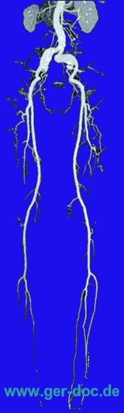 Диагностика заболевания периферических артерий в Мюнхене