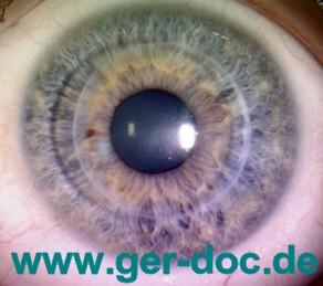 Лечение Отслоение сетчатки глаза в Германии