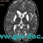 Диагностика заболеваний головного мозга в Мюнхене.