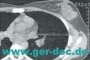 Диагностика и лечение рака молочной железы в Мюнхене.
