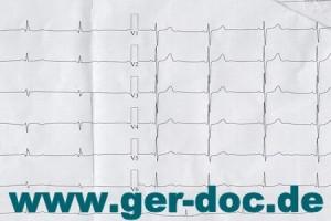 Диагностика и лечение мерцательной аритмии в Мюнхене