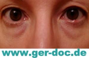 Диагностика офтальмопатии в Мюнхене.