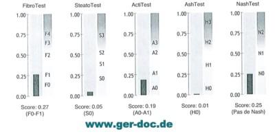 Лечение вирусных гепатитов в Германии