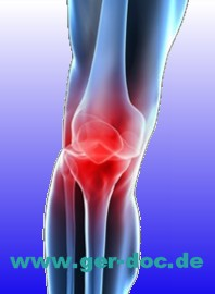 Диагностика остеоартроза в Германии