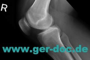 Диагностика травм коленного сустава в Мюнхене.