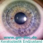 Кератопластика в Германии