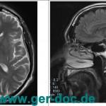 МР-томография и МР-ангиография черепа