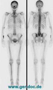 Визуализация общей скелетной системы в дорсальной и вентральной проекции.