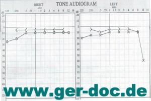 Диагностика и лечение пациентов с затруднением слуха в Мюнхене.
