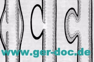Диагностика и лечение расслаивающей аневризмы аорты в Мюнхене.