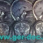 Диагностики и лечение церебрального арахноидита в Мюнхене.