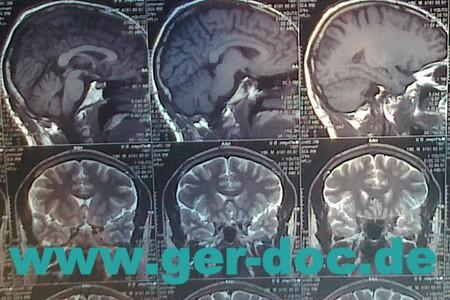 Диагностики и лечение церебрального аномалии кемерли в Мюнхене.