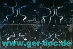Диагностика заболеваний сосудов головного мозга в Мюнхене.