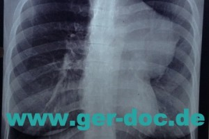 Диагностика заболеваний легких в Мюнхене.