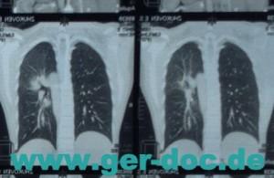 Диагностика карциноматоза легких в Мюнхене.