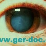 Операции глаз в Мюнхене.
