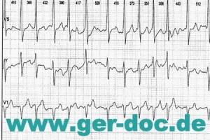 Лечение заболеваний сердца в Мюнхене.