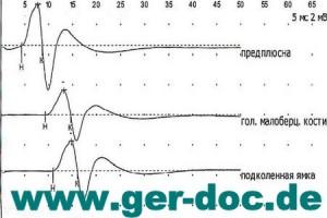 Диагностика нейромоторного аппарата в Мюнхене.
