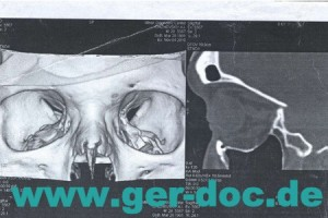Лечение повреждений черепа в Мюнхене.