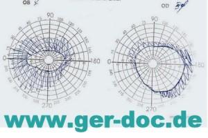 Диагностика заболеваний глаз в Германии.