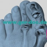 The treatment and diagnosis of hallux valgus foot in Germany.