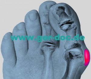 Treatment of bunion (hallux valgus) in Germany.