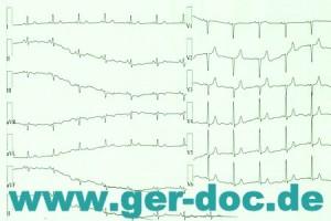 Диагростика и лечение инфаркта в Германии.