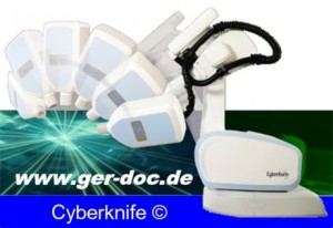 Cancer treatment in Germany with Cyberknife