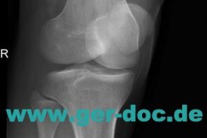 Диагностика и лечение травм коленного сустава в Мюнхене.