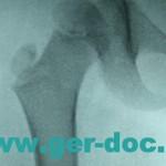 Диагностика и лечение тазобедренных суставов в Мюнхене.
