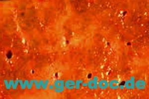 Диагностика и лечение заболеваний печени в Германии.
