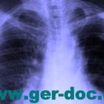 Диагностика и лечение заболеваний легких Мюнхене