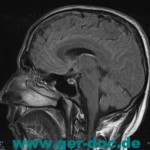МРТ и МРА головы