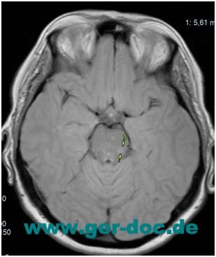 Диагностика и лечение рассеянного склероза в Германии