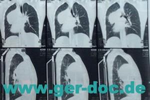 Диагностика микоза легких в Мюнхене.