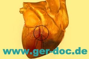 Диагностика и лечение осложнений инфаркта миокарда в Мюнхене.