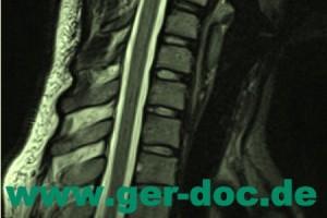 Диагностика и лечение остеохондроза позвоночника в Мюнхене.
