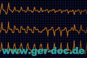 Диагностика и лечение заболеваний сердца в Мюнхене.