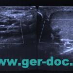 Диагностика рака яичка в Мюнхене.